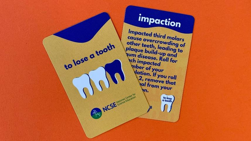 To Lose A Tooth activity cards